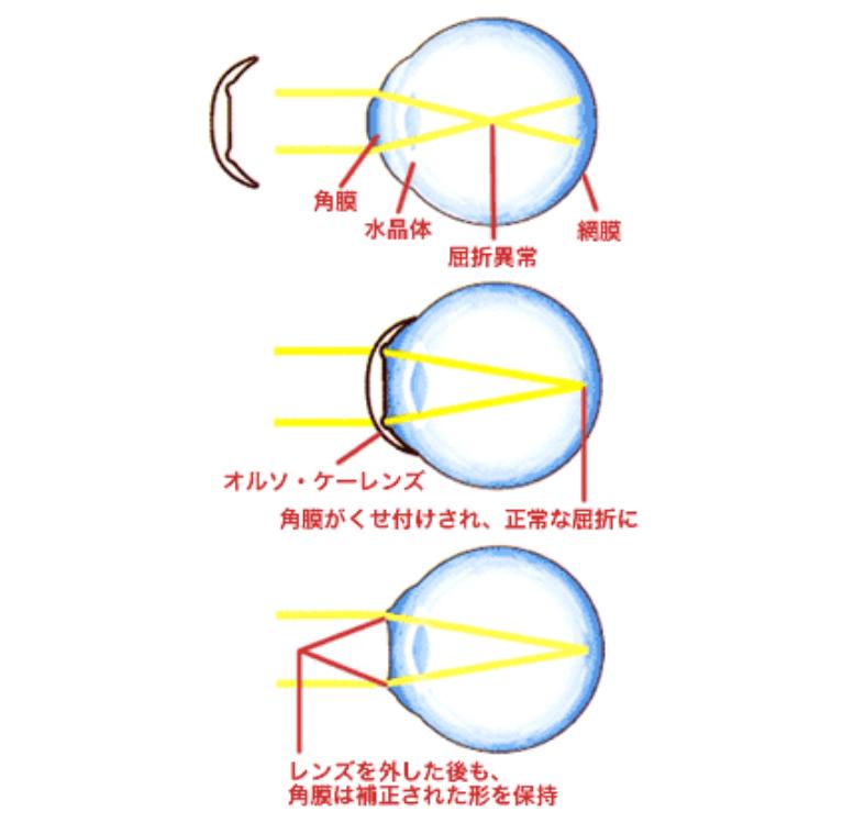 角膜形状矯正の仕組み